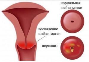Эктропион шейки матки: что это такое, лечение, чем опасен, фото