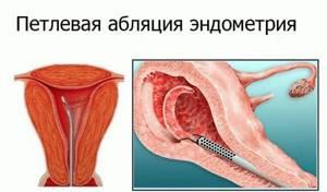 Абляция эндометрия: что это такое, отзывы, сколько стоит