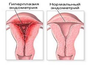 Толстый эндометрий: причины увеличения слизистого слоя в матке