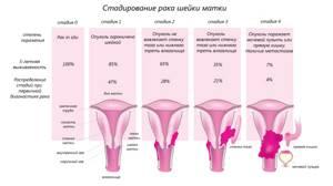 Лучевая терапия при раке шейки матки: отзывы, виды, последствия, диета