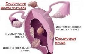 Миома матки: симптомы и признаки, как распознать болезнь