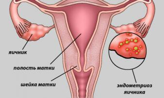 Наружный генитальный эндометриоз: что это такое, симптомы и лечение