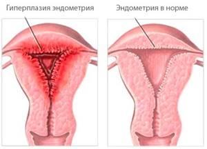 Эндометрий пролиферативного типа: что это такое