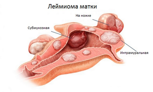 Миома матки малых размеров: причины, лечение, противопоказания, беременность