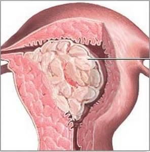 Очаговая гиперплазия эндометрия: что это такое, как лечить