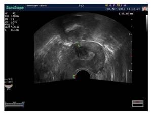 Субмукозная миома матки: что это такое, размеры для операции, лечение