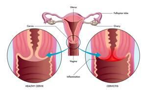 Эндоцервицит: что это такое в гинекологии, симптомы и лечение