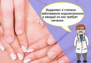 Эндометриоз у женщин после 40-50 лет: симптомы и лечение