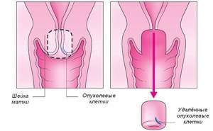 Инвазивный и неинвазивный рак шейки матки: что это такое
