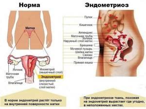 Эндометриоз после кесарева сечения: шва, рубца