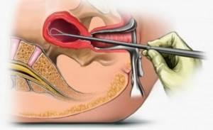 Диагностическое выскабливание полости матки при миоме: отзывы пациенток