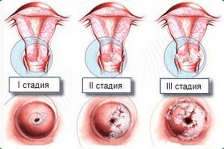 Симптомы эрозии шейки матки
