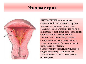 Антибиотики при эндометрите у женщин