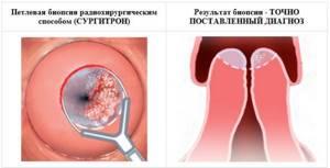 Биопсия шейки матки при эрозии: как проводится, результаты, отзывы