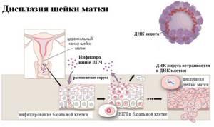 Дисплазия шейки матки 1 степени: что это, лечение, прогноз, отзывы