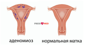 Аденомиоз матки: что это такое и как лечить