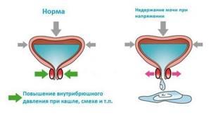 Пессарий при опущении матки: отзывы, виды, инструкция пользования
