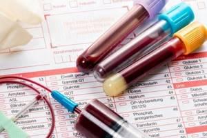 Что такое лямблиоз: симптомы, источники заражения и лечение