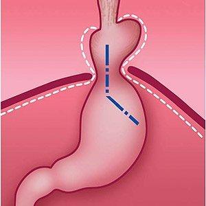 Грыжа пищевода: причины, симптомы, диагностика и лечение