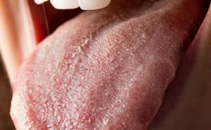 Кандидоз слизистых оболочек полости рта, языка