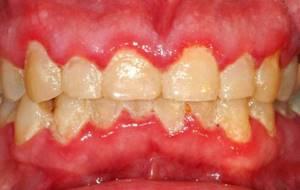 Гингивостоматит (болезнь десен)