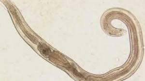 Анкилостомидозы (ancylostomidosi)