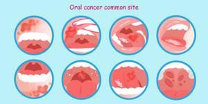 Лечение стоматита и ожогов во рту облепиховым маслом и чистотелом