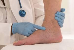 Острый тромбофлебит - причины, симптомы и лечение