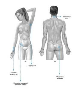 Карбункул - симптомы и лечение