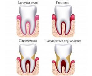 Противовоспалительное средство для полоскания полости рта