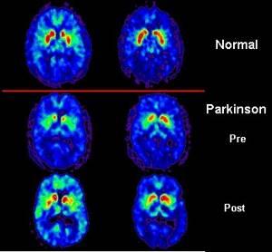 Что такое болезнь Паркинсона: признаки, причины и лечение паркинсонизма