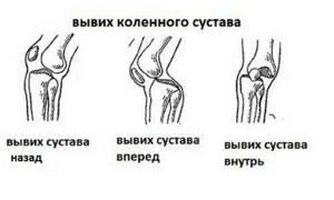 Вывихи колена