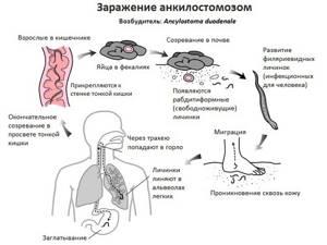 Анкилостомоз: Что за паразит является анкилостома?