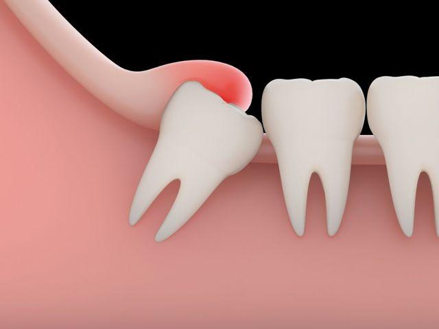 Перикоронарит (зуб мудрости) - симптомы и лечение