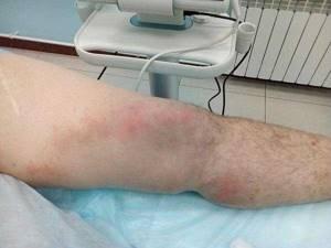Осложнения варикозного расширения вен ног
