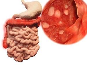 Кровь из заднего прохода: 9 причин анального кровотечения и как их лечить?
