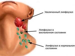 Острый лимфаденит - симптомы и лечение