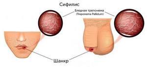 Что такое сифилис: симптомы, причины и лечение данной болезни
