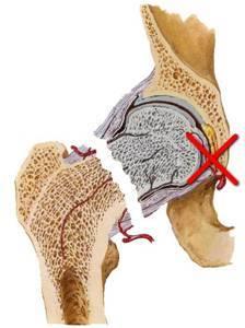 Переломы хирургической шейки