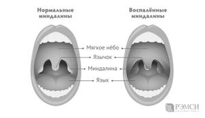 Что такое ангина: причины, симптомы и лечение