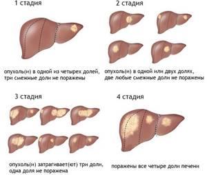 Рак печени - симптомы, причины и лечение