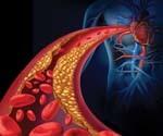 Атеросклероз - причины, симптомы и лечение