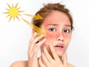 Солнечный ожог: какие обострения могут произойти?