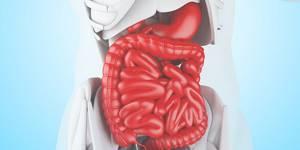 Острая кишечная непроходимость: виды, симптомы, диагностика и лечение
