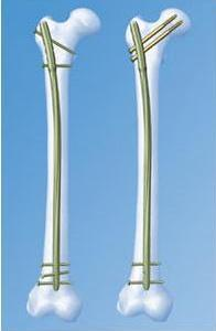 Переломы диафиза локтевой кости с вывихом головки лучевой кости (типа Монтеджи)