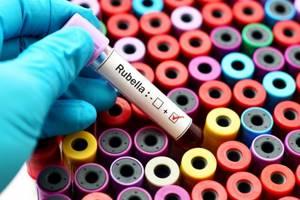 Корь и краснуха: Почему прививка имеет смысл?