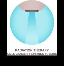 Что такое лучевая терапия (радиотерапия) и какие у неё побочные эффекты?