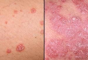 Что такое псориаз: причины, симптомы и лечение расстройства