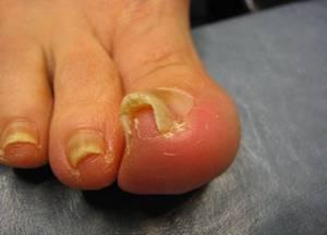 Вросший ноготь - причины, диагноз, симптомы и лечение