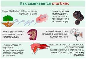 Столбняк - симптомы, профилактика и лечение